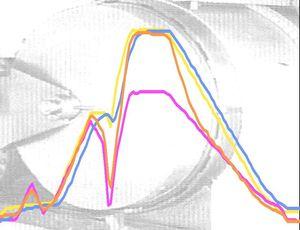 Mesures température, pression et déformation au cours de la stérilisation